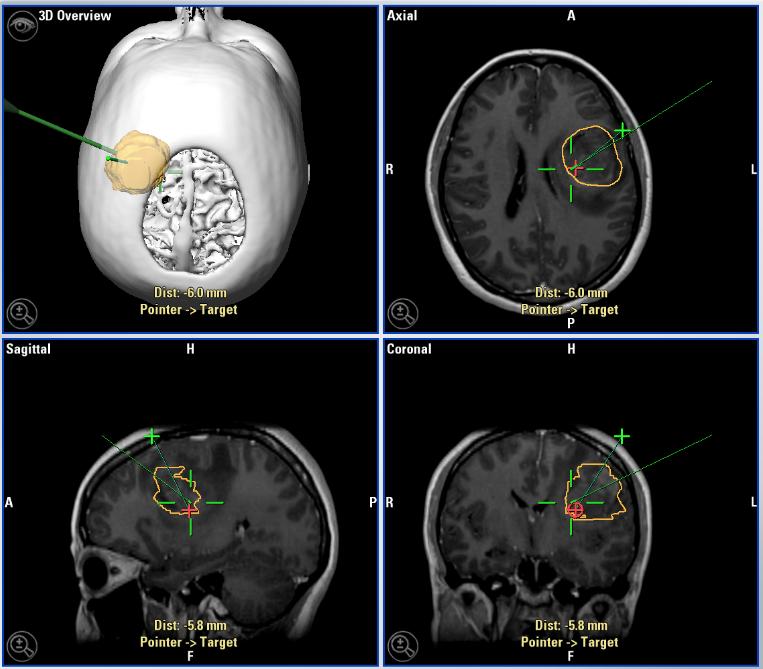 Glioma, Fluorescencia, Navegación y Neuroimagen avanzada